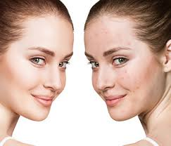 woman face before and aftrer acne treatment